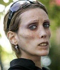 Isabelle CARO 9 septembre 1980 - 17 décembre 2010